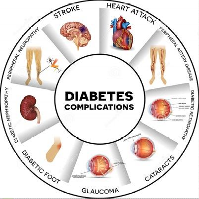 diabetes prevention 2